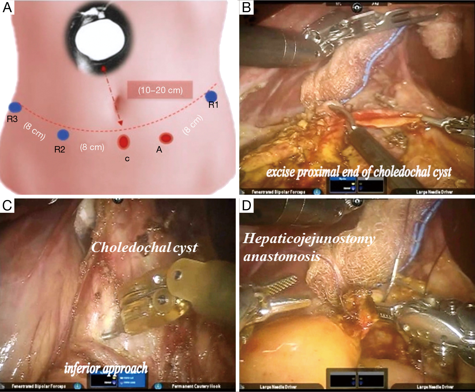 Robotic assisted excision of type I choledochal cyst with