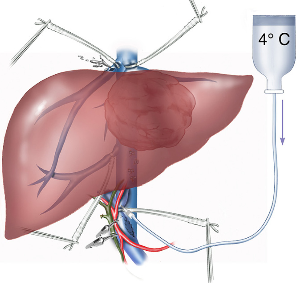 Liver Resection Using Total Vascular Exclusion Of The Liver